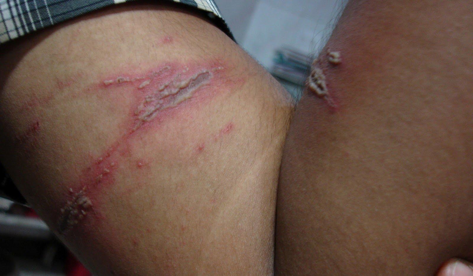 paederus_dermatitis_kissing_lesions_1_061030